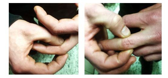 Capsulitis en dedo (Foto de http://handtherapybcn.com)